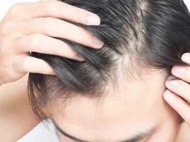 Điều trị rụng tóc công nghệ sinh học