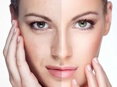 Trẻ hóa xóa nhăn vùng mắt
