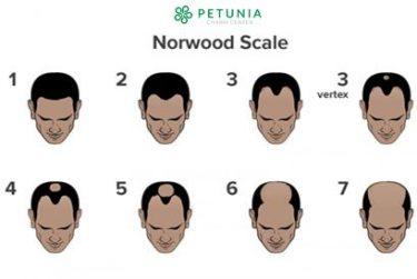 Các mức độ hói đầu phân loại theo thang điểm Norwood