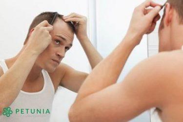 Hói đầu do di truyền có chữa được không?