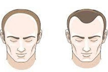 Tổng hợp các câu hỏi thường gặp về rụng tóc ở nam giới