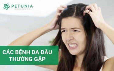 Các bệnh da đầu thường gặp