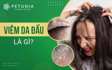 Viêm da đầu là bệnh gì?