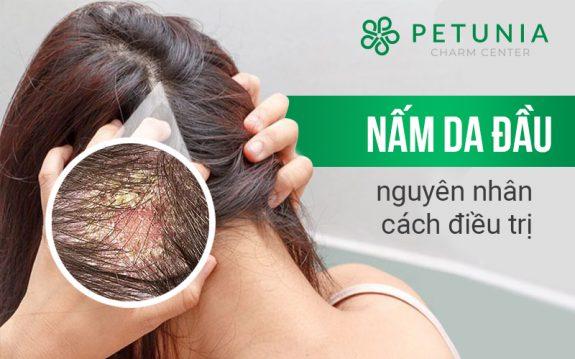 Bệnh nấm da đầu, nguyên nhân và cách khắc phục