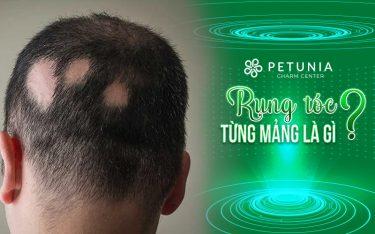 Rụng tóc từng mảng: Dấu hiệu, nguyên nhân, cách khắc phục