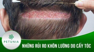 Những rủi ro khôn lường do cấy tóc