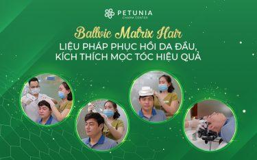 Giải pháp phục hồi mái tóc không phẫu thuật nhờ ứng dụng từ công nghệ Ballvic Matrix Hair